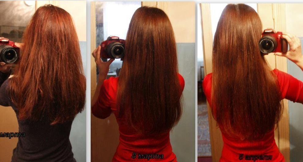 Никотиновая кислота для волос инструкция по применению