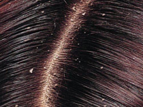 Себорея кожи головы лечение