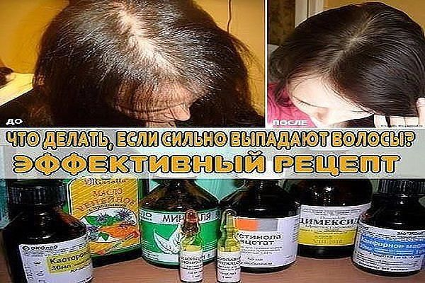Почему у пожилых выпадают волосы
