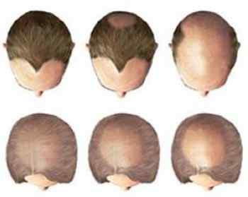 Алопеция кожи головы
