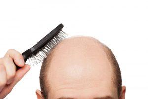 У кого чаще выпадают волосы, у мужчин или у женщин