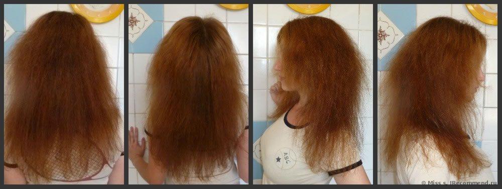 Избыточный рост волос на ногах у женщин избыток, напротив