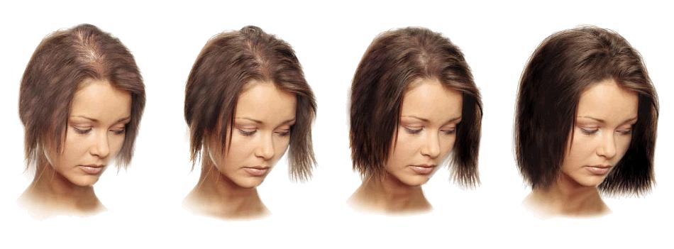 Выпадают волосы из-за гормонального сбоя что делать