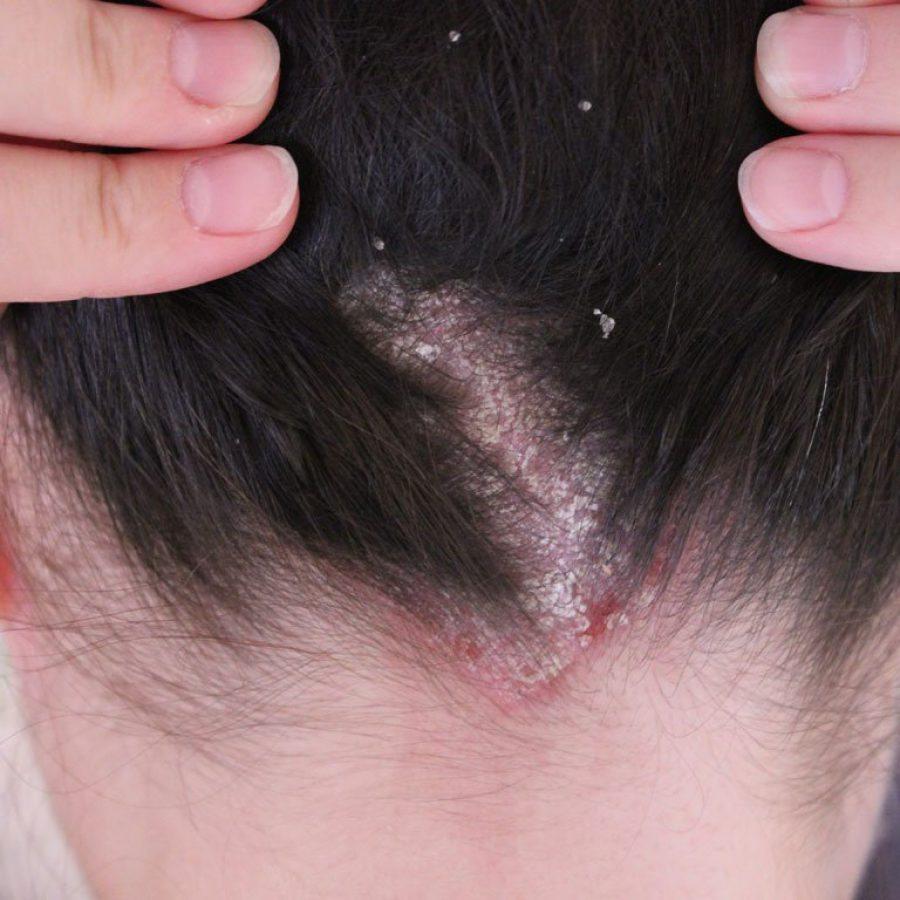 избавиться от паразитов волосах