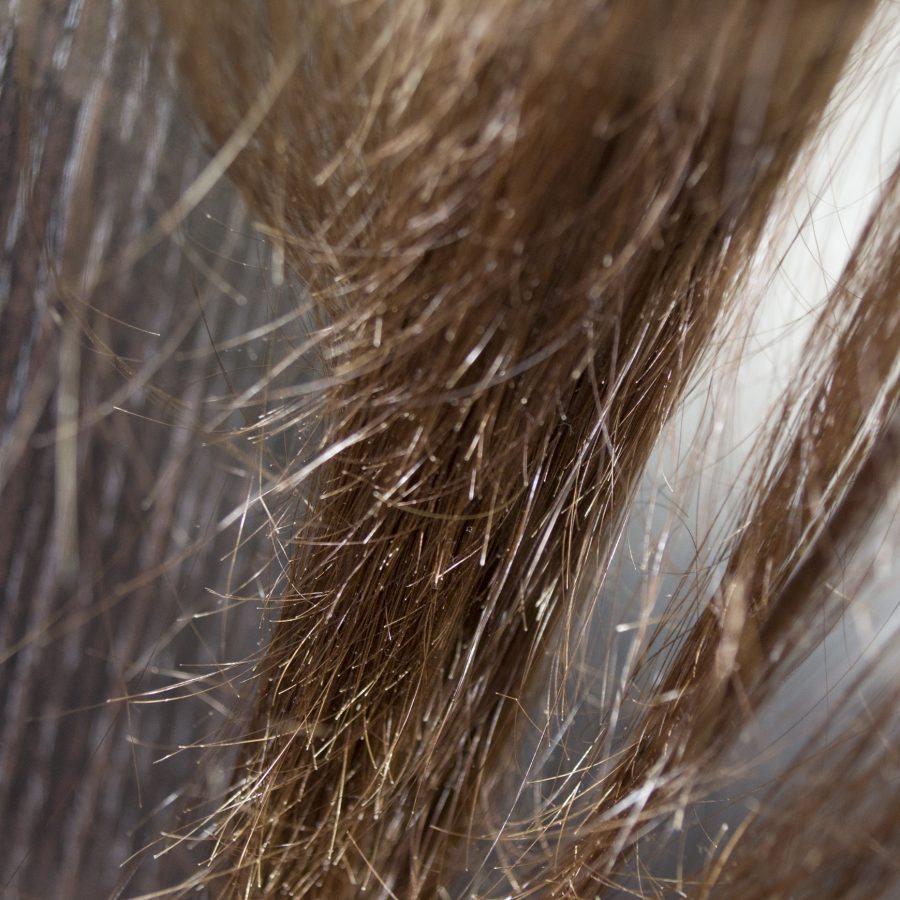 Сильно секутся волосы