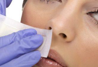 Для процедуры может использоваться воск и сахар. После этого замедляется рост волос