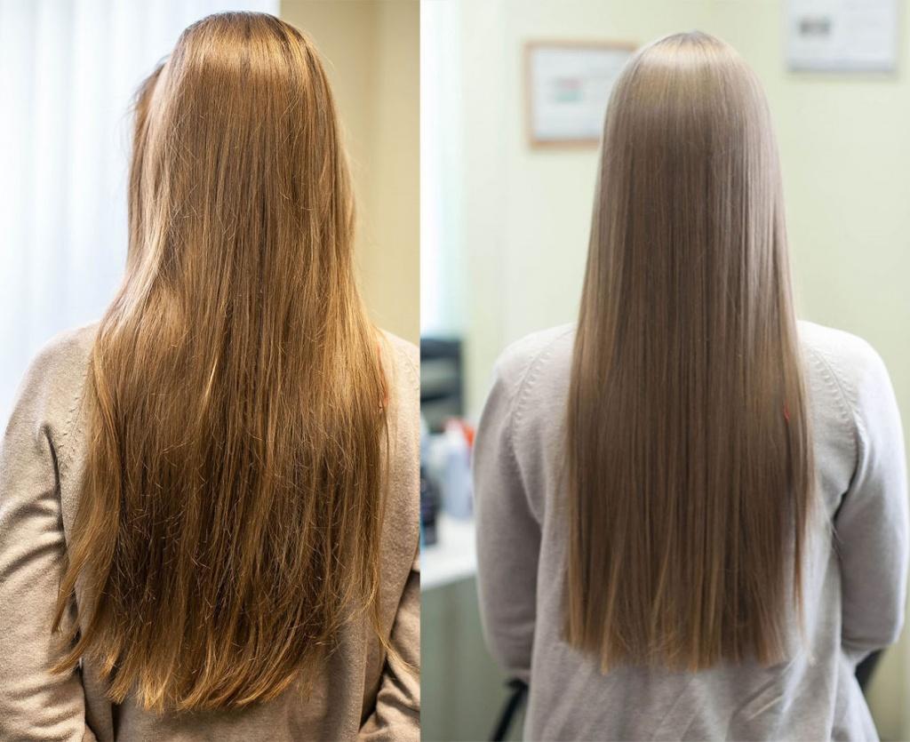 Лечение седых волос отзывы