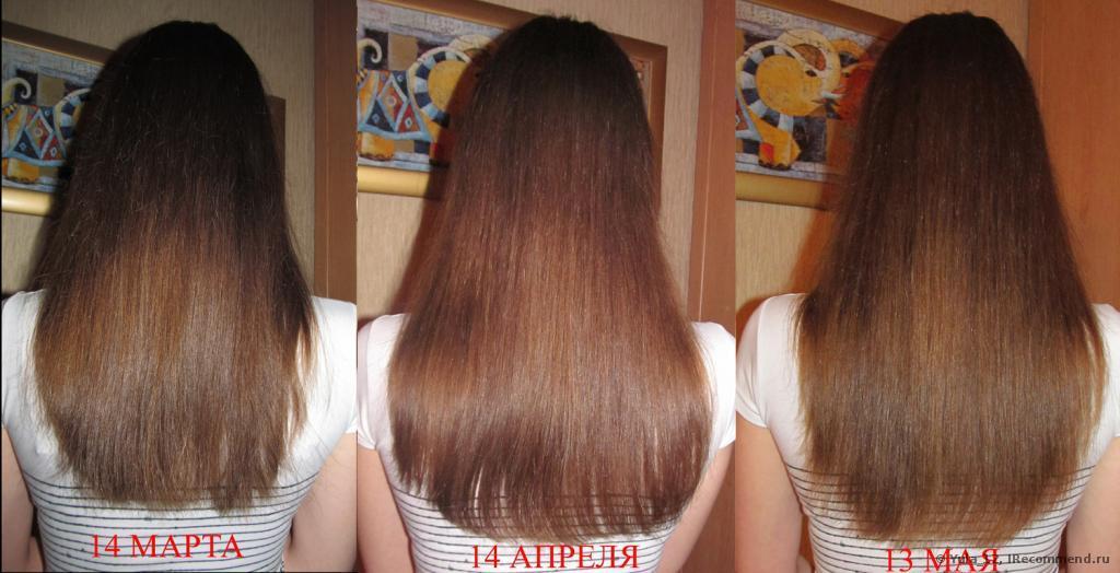 Для роста волос луковый сок