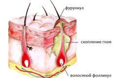 Появление гнойников на голове причины и лечение