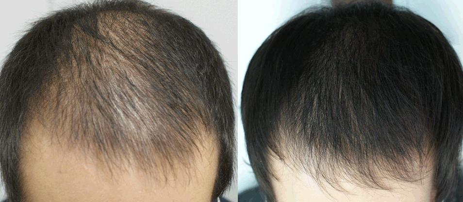 Как выпадают волосы при алопеции